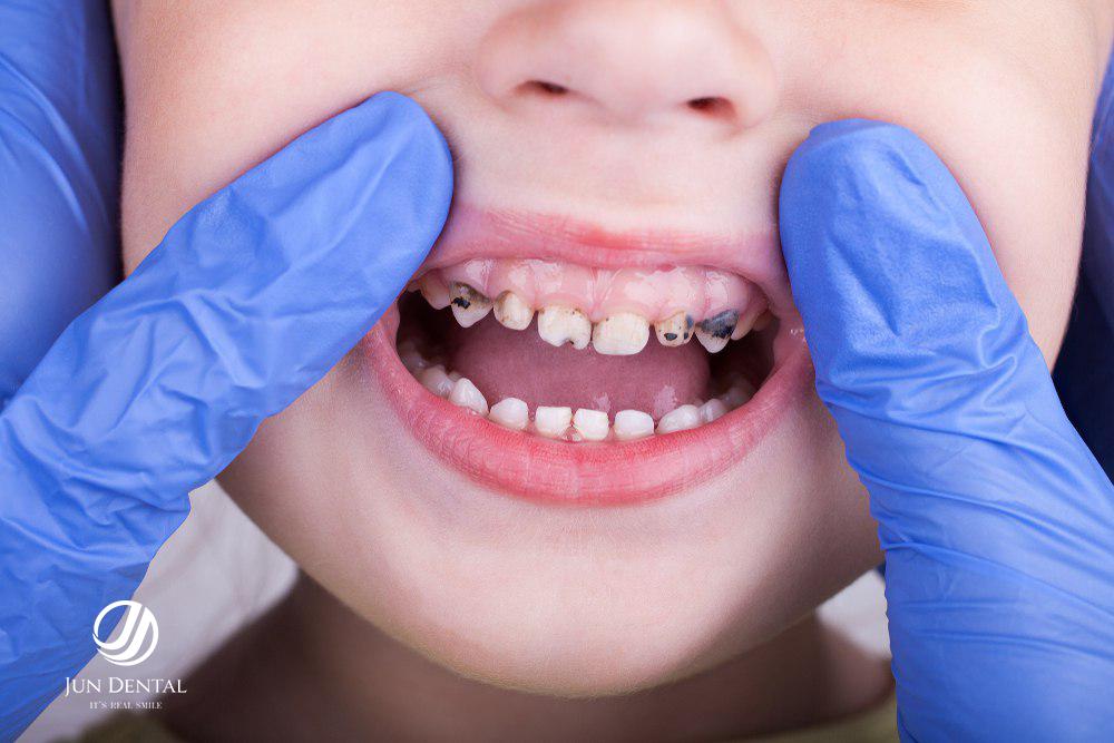 Con bị sâu răng sữa thì phải làm gì?