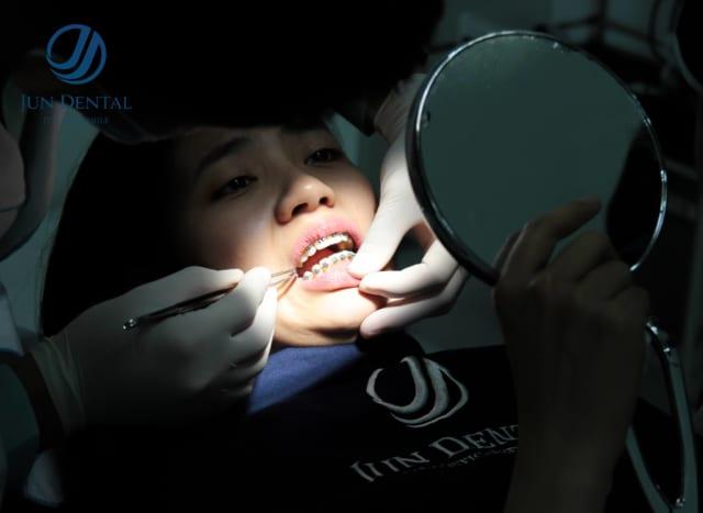 Độ bền của răng sứ thẩm mỹ giữ được bao lâu phụ thuộc rất nhiều yếu tố khác nhau, do đó, bạn cần tìm được địa chỉ nha khoa uy tín đạt được kết quả như ý