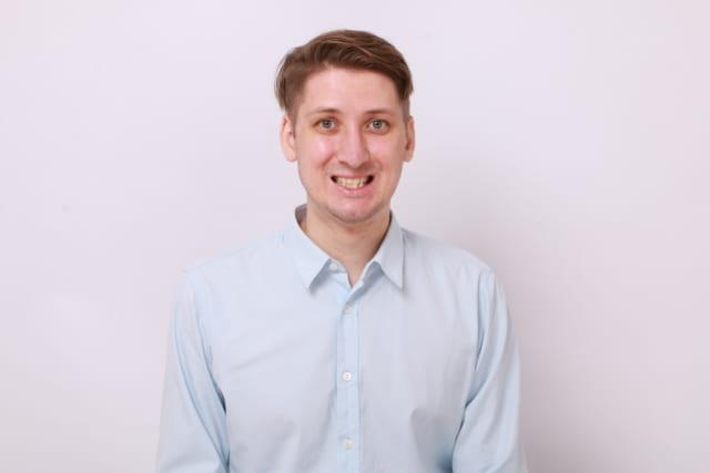 Alexandre sở hữu hàm răng không đều, hàm trên hơi hô, hàm dưới răng mọc khấp khểnh