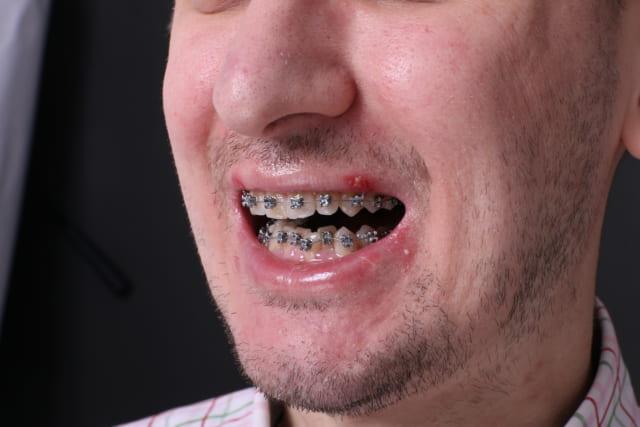 Sau khi được tư vấn Alexandre quyết định niềng răng mắc cài kim loại tại Jun Dental