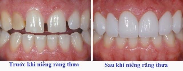 Niềng răng thưa giúp điều chỉnh những chiếc răng về sát nhau hơn, xóa bỏ khoảng thưa giữa các răng