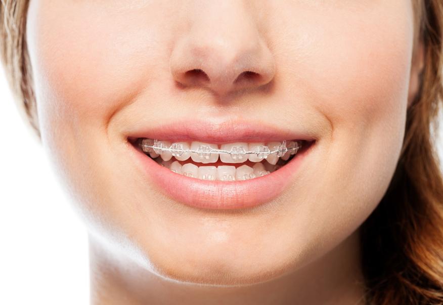 Phương pháp niềng răng hiệu quả cho người bị răng thưa