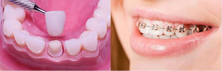 Răng mọc lệch lạc không đều nên bọc răng sứ thẩm mỹ hay niềng răng?