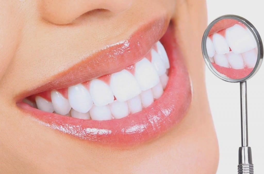 Làm răng sứ thẩm mỹ khoảng bao lâu thì hết ê buốt?