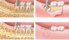 Răng khôn nếu không được nhổ bỏ sẽ gây nên nhiều bệnh nguy hiểm ảnh hưởng tới sức khỏe người bệnh