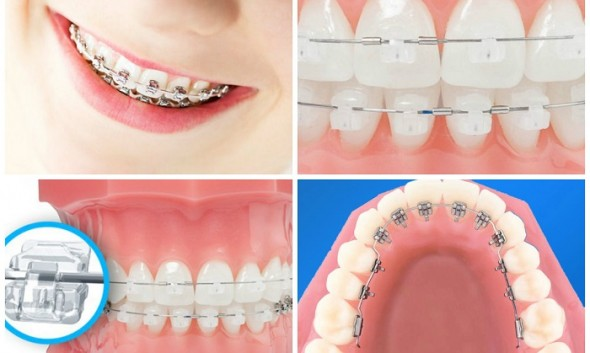 Niềng răng không chỉ giúp cho khuôn hàm đều, đẹp còn giúp bảo vệ răng khỏi những bệnh lý
