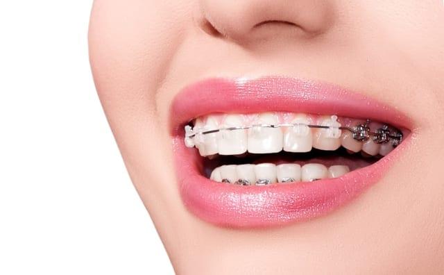 Bác sĩ khuyên bệnh nhân nên điều trị triệt để sâu răng mới nên niềng răng