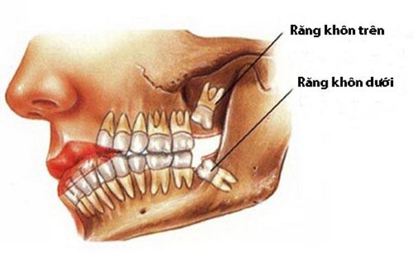 Răng khôn và những mối nguy hiểm khôn lường