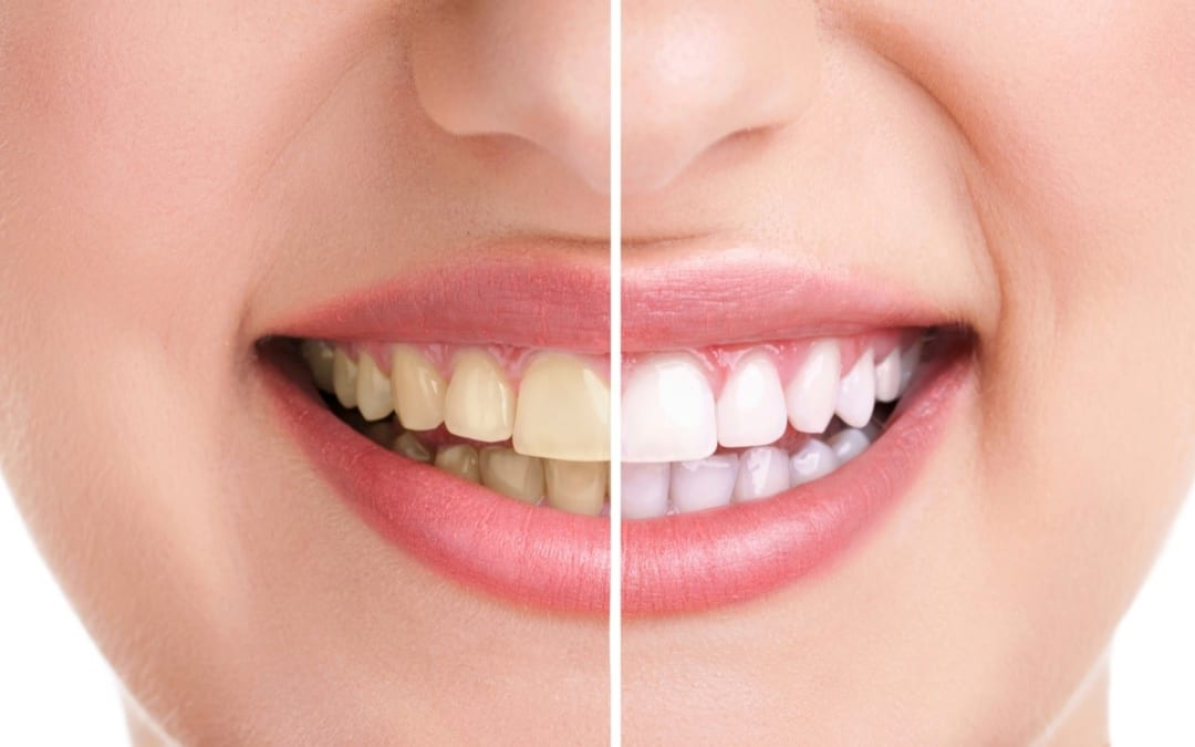 Màu sắc răng có liên quan tới sức khỏe răng miệng như thế nào?