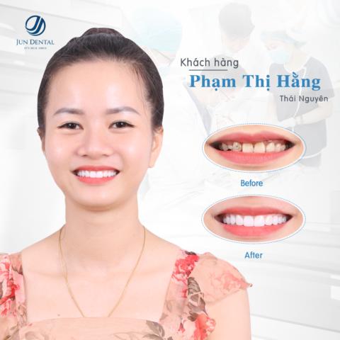 Chị Phạm Thị Hằng đến từ Thái Nguyên đã nâng tầm nhan sắc sau khi thực hiện làm răng sứ thẩm mỹ tại Jun Dental