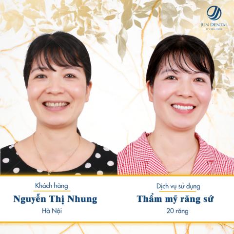 Bị mòn cổ răng và viêm lợi khiến cho chị Nhung gặp khá nhiều khó khăn trong cuộc sống hàng ngày. Để khắc phục tình trạng này, chị Nhung quyết định tới Jun Dental làm 20 chiếc răng sứ thẩm mỹ để kiến tạo nụ cười duyên cho mình.