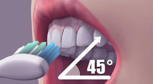 Răng miệng nếu không được vệ sinh đúng cách hoặc ăn uống sinh hoạt chưa hợp lý vẫn có thể gây sâu răng