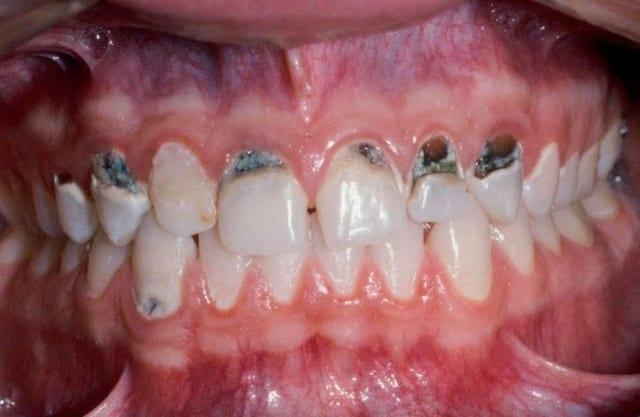 Nếu kẽ răng bị đen không được điều trị kịp thời có thể gây nên các bệnh lý răng miệng khác