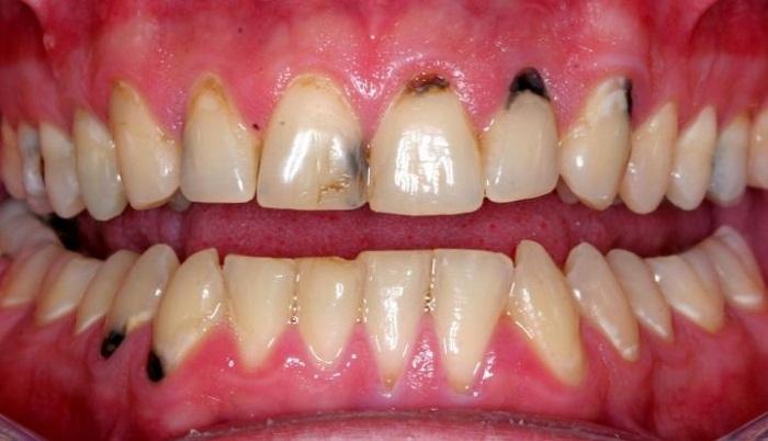 Kẽ răng bị đen và cách khắc phục