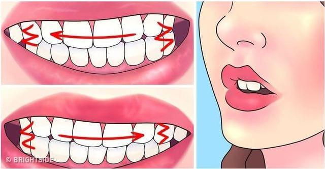 Nguyên nhân gây bệnh nghiến răng là do các thói quen và tâm lý gây nên, do đó sẽ không có tính lây như các bệnh virut khác