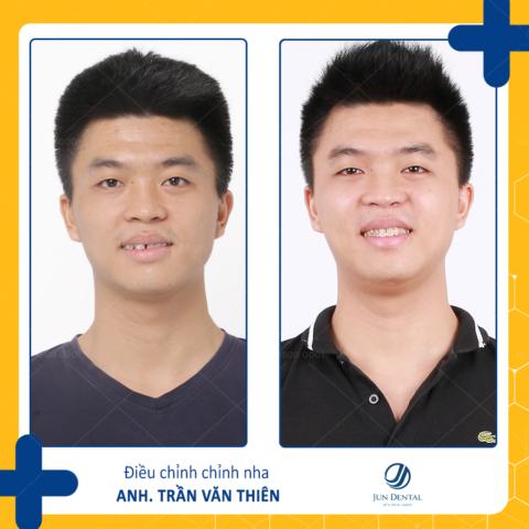 Khách hàng tới với Jun Dental thực hiện chính sách niềng răng trả góp sẽ được tư vấn và hướng dẫn tận tình