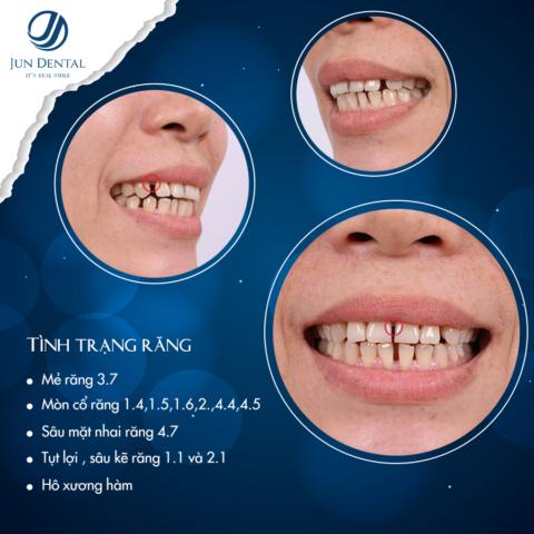 Sở hữu hàm răng thưa kém duyên chị Thúy quyết định vượt gần 1000km để tới Jun Dental làm răng sứ thẩm mỹ