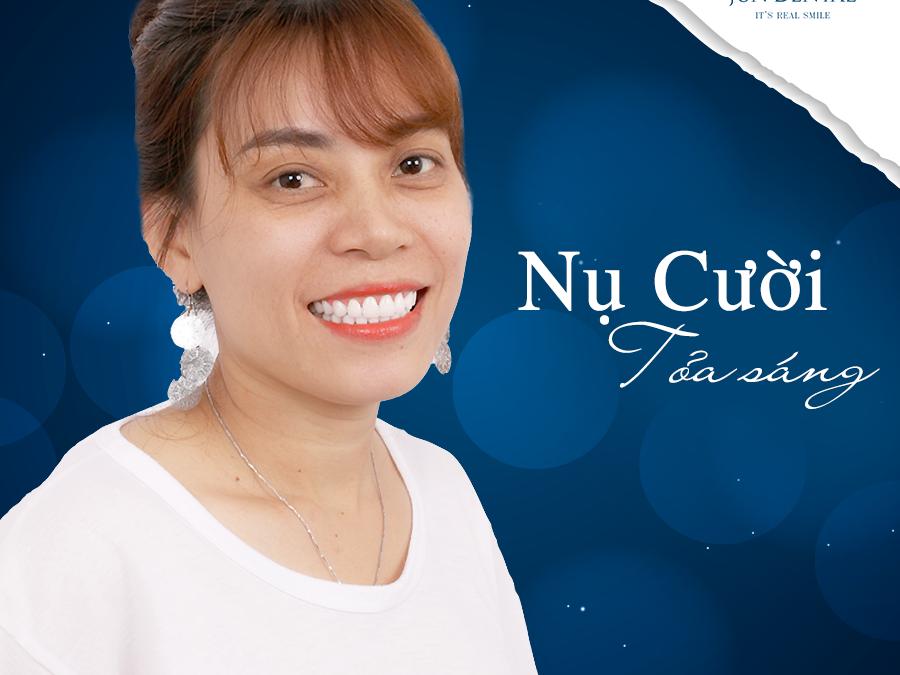 Chia sẻ của chị Thúy sau khi làm răng sứ thẩm mỹ tại Jun Dental