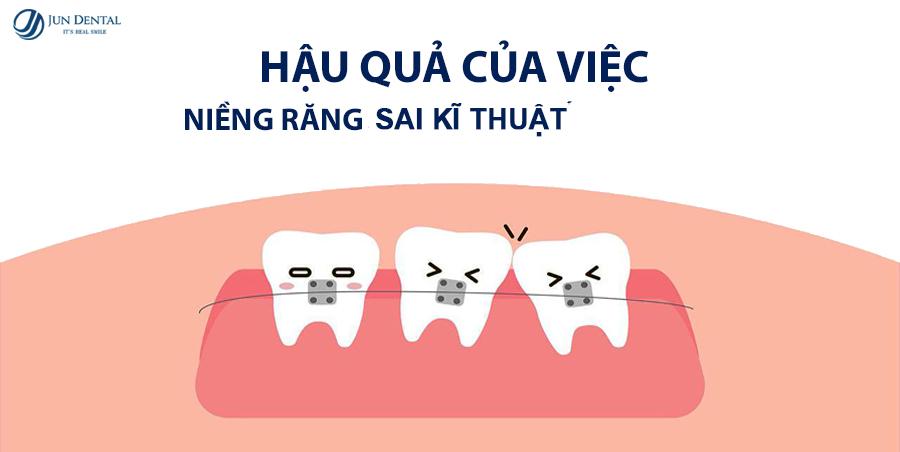 Những nguy cơ tiềm ẩn trong niềng răng mà bạn buộc phải biết