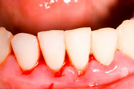 Nguyên nhân chảy máu chân răng khi mang thai
