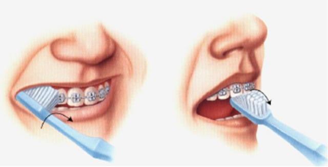 Việc vệ sinh răng miệng sạch sẽ xưa nay luôn được các chuyên gia, bác sĩ nha khoa khuyên bạn cần phải chú trọng