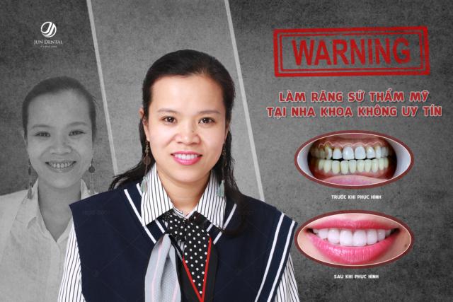 Là một trong những ca phục hình răng sứ hỏng, chị Hải Hà đã tới Jun Dental thực hiện 21 chiếc răng sứ Ceramill Đức để có nụ cười hoàn mỹ hơn
