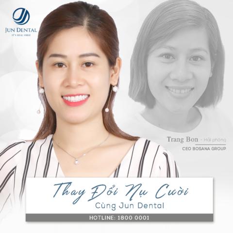 Làm răng sứ thẩm mỹ từ 1 năm trước, chị Trang vẫn giữ nét đẹp duyên dáng với nụ cười tươi mới, tràn đầy năng lượng