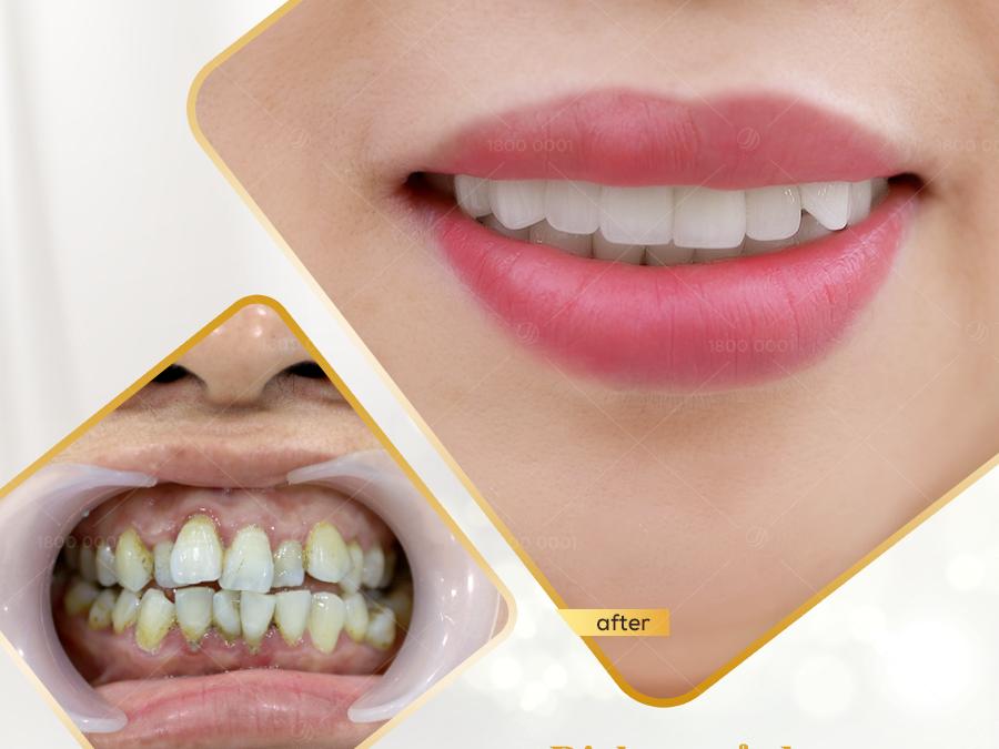 Tổng hợp những ca làm răng sứ thẩm mỹ thành công tại Jun Dental P2