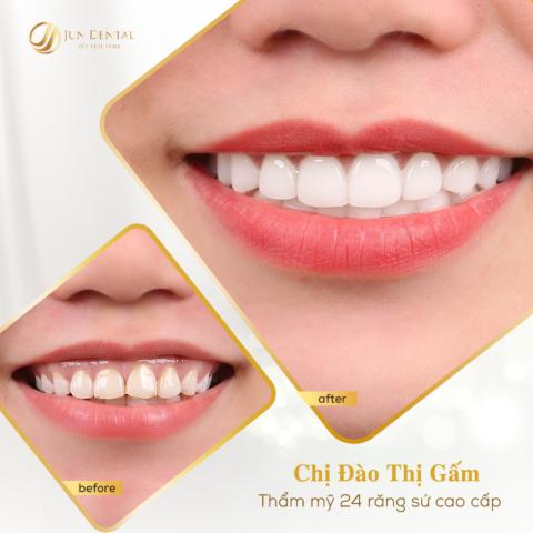 Thực hiện 24 chiếc răng sứ thẩm mỹ tại Jun Dental giúp nụ cười của chị Gấm trở nên tươi sáng và tràn đầy sức sống hơn