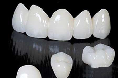 Có nên Thẩm mỹ răng sứ trước Tết?