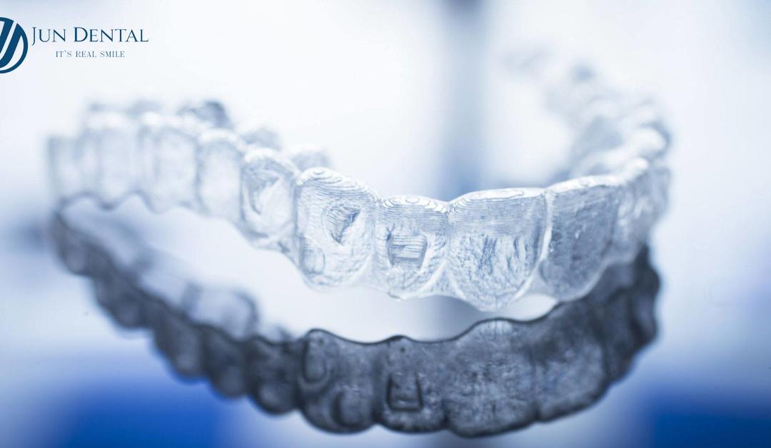 HỎI ĐÁP: Niềng răng Invisalign