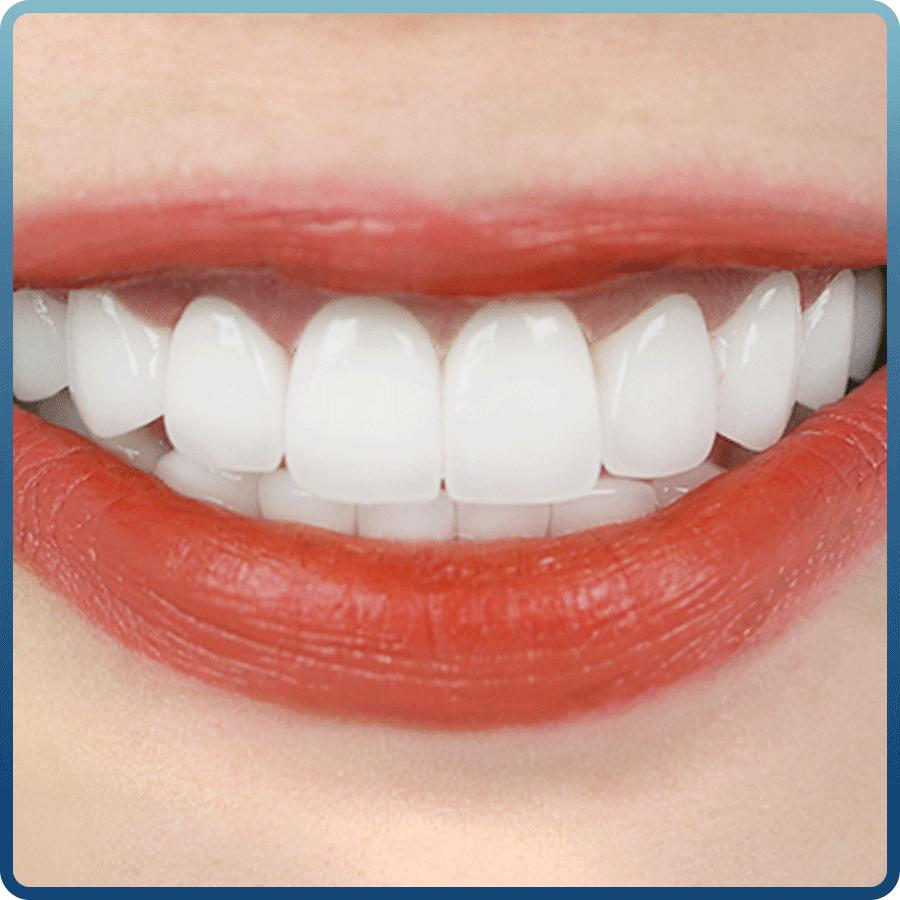 Chuyên gia chia sẻ ưu và nhược điểm của răng sứ thẩm mỹ