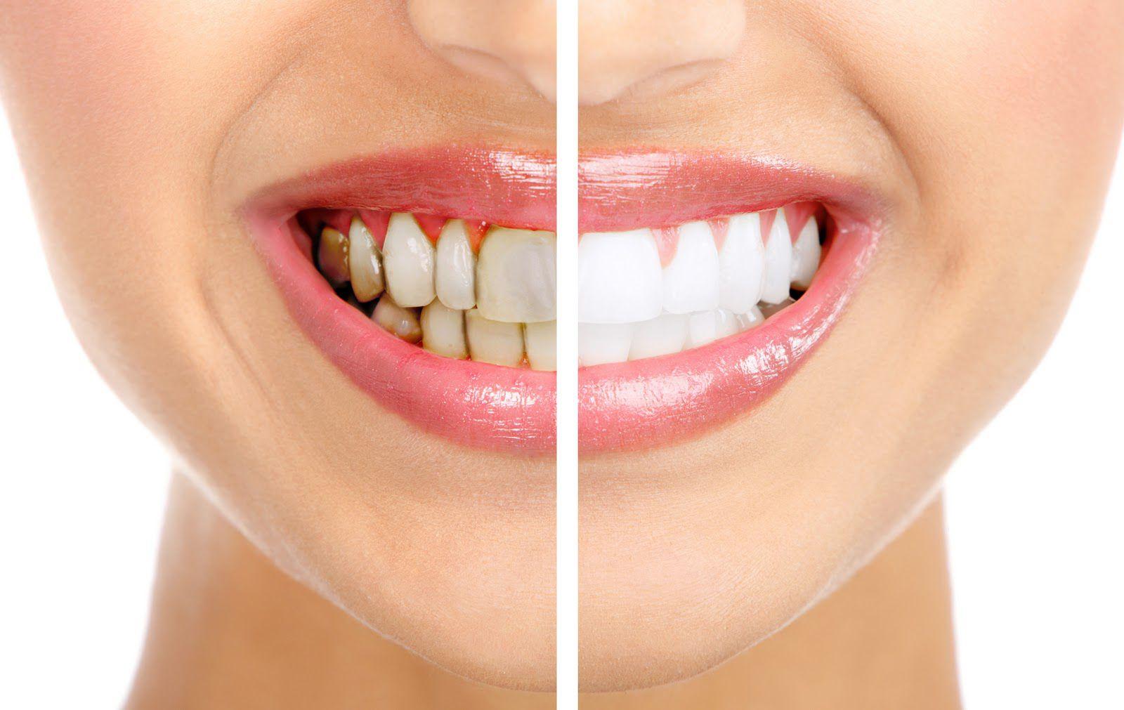 Tẩy trắng răng thẩm mỹ Pro Whitening S