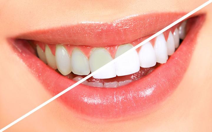Răng sứ có bị ố vàng không?