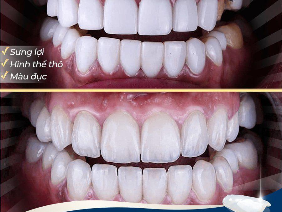 Tự phân biệt các loại răng sứ thật giả kém chất lượng
