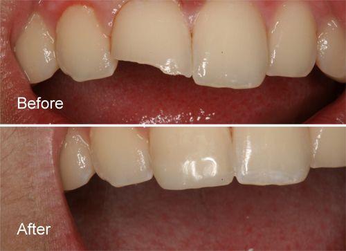 Vì sao miếng hàn răng lại ngả màu?