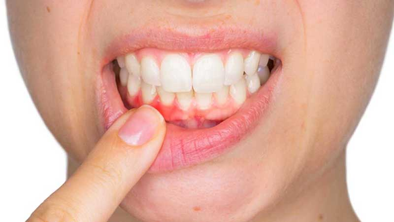 Tầm soát ung thư khoang miệng
