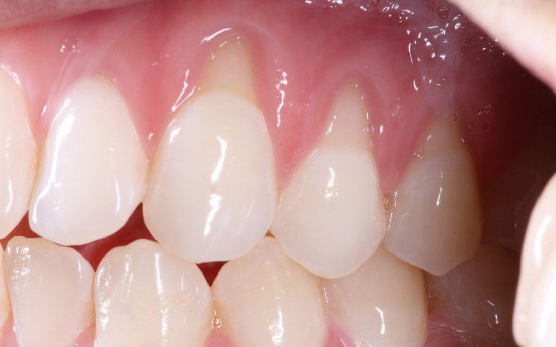 Mòn cổ chân răng là gì?