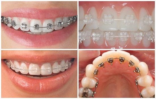 Niềng răng loại nào nhanh chóng và tốt nhất hiện nay?