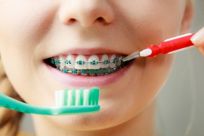 Tái khoáng răng khi niềng răng
